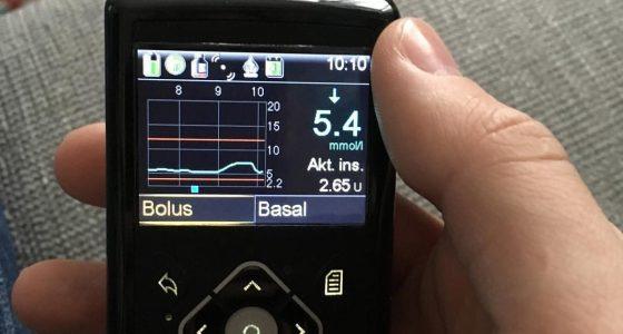 Joustoa elämään insuliinipumpulla