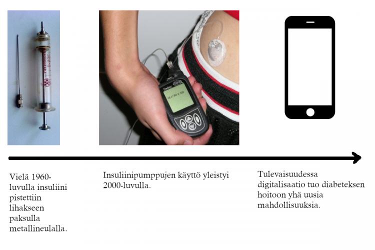 Hoitoteknologioiden kehitys keventää diabeteksen omahoitoa